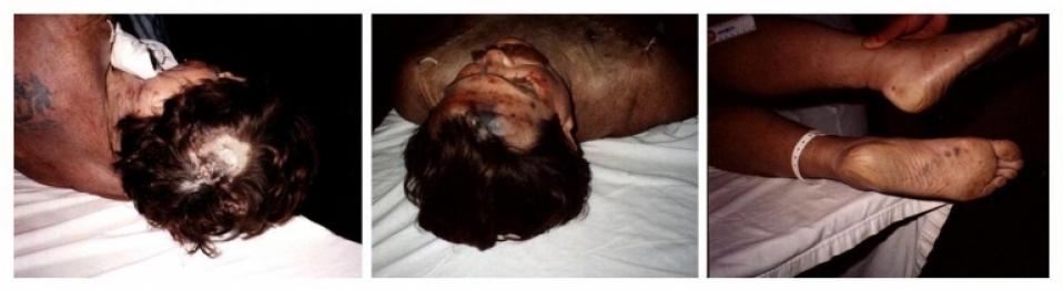 ... Ron Goldman Autopsy Nicole Brown Simpson & Oj Case Pdf Pictures Oj Simpson Crime Scene Photos