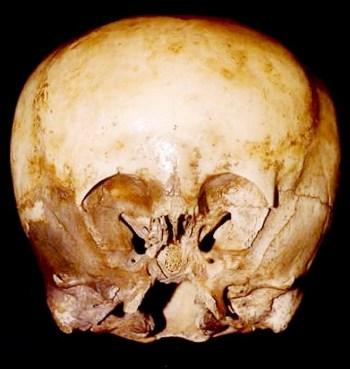 starchild-skull