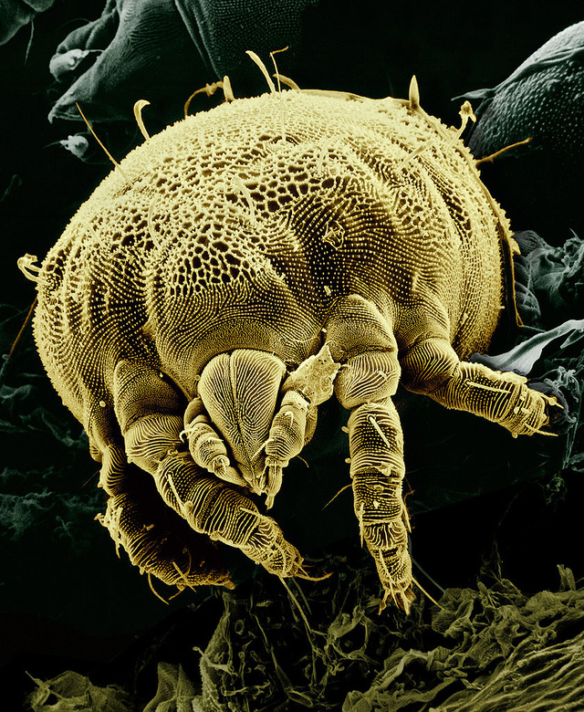 A mite, magnified about 850x
