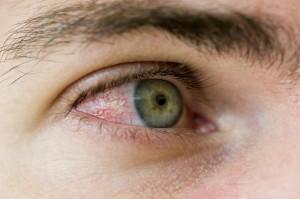 red-eyes-1