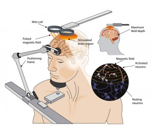 Transcranial-Magnetic-Stimulation-Diagram